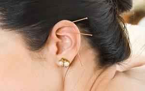 akupunktur tedavisi antalya